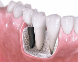 Dental-Implants-chattanooga-tn