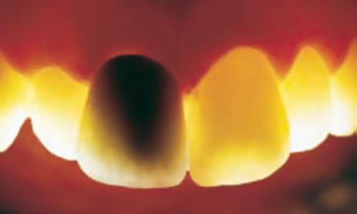 system-cyfrowych-koron-pelnoceramicznych-Lava-3M-USA